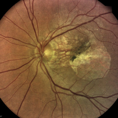 TrueColor retinal image of age-related macular degeneration (AMD) taken with iCare DRSplus