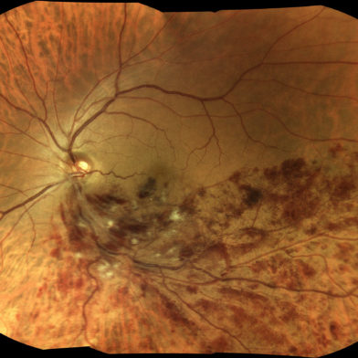 TrueColor mosaic retinal image of branch retinal vein occlusion (BRVO)