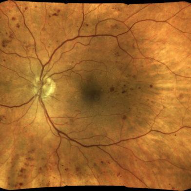 TrueColor mosaic retinal image of diabetic-retinopathy