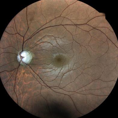 TrueColor retinal image of glaucoma